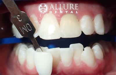 teeth whitening after northshore